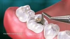 the cavity being filled with amalgam