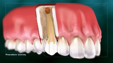 a tooth with an infected root