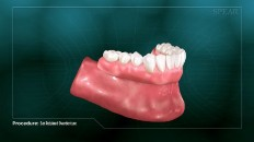 completed bottom dentures