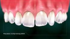 top row of teeth