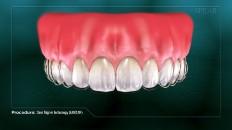 teeth more inline