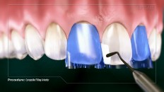 the tooth being filled with composite material