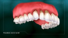 teeth with receding gums