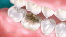 an infected cracked tooth