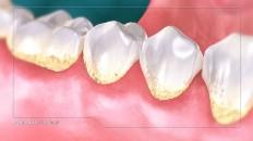 teeth yellowing at the bottom