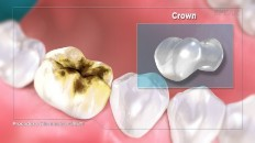 a tooth that needs a crown