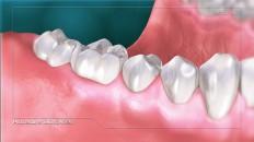 a set of teeth with gum disease