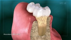 a cross section of teeth with gum disease