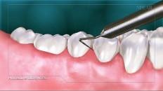 healthy teeth with a tool