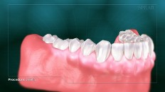 teeth with inflamed gums