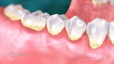 teeth with red gums and yellowing teeth