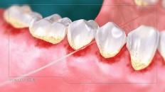 teeth being flossed
