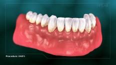 a set of bottom teeth