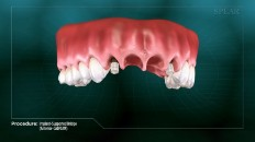 a section of gums with implants