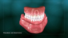a full set of dentures
