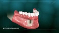 bottom dentures on a prosthesis