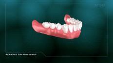 a row of bottom teeth