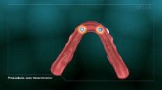 the underside of dentures