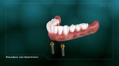 bottom dentures over a pair of screws