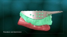 teeth being sized for dentures