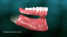 bottom dentures being placed on gums