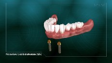 dentures with screws below them