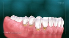 teeth with plaque around the gumline