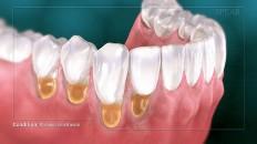 teeth with plaque below the gumline