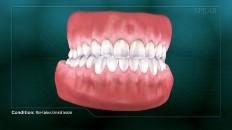 full set of clean teeth