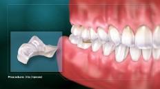 close up of teeth onlay