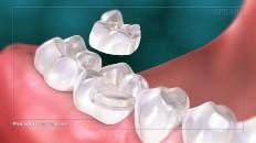 an onlay over teeth