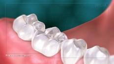 a restored set of bottom teeth