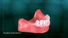 bottom front dentures