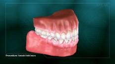 a full set of teeth closed
