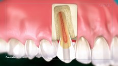 a tooth with an inflamed root