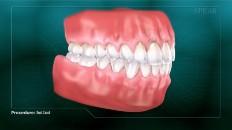 a full set of teeth