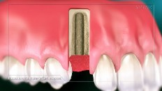 gums with an implant socket