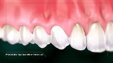 a top row of clean, healthy teeth