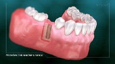 gums with an empty place for an implant