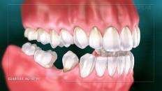 teeth slowing missing