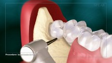 a tooth clearing space around the wisdom tooth