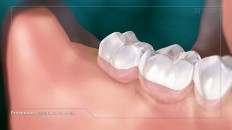 healthy gums with wisdom tooth extracted