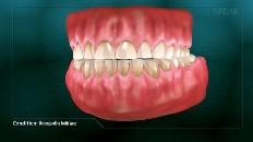 teeth worn down from grinding