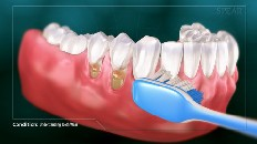 a blue tooth brush brushing teeth