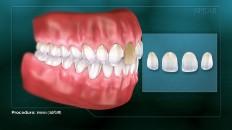 a set of teeth with veneer diagram