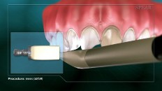 teeth being scanned