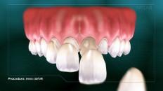 veneers being applied to front teeth