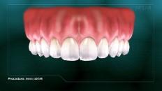 a set of clean teeth