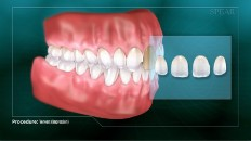 set of teeth with veneers diagram