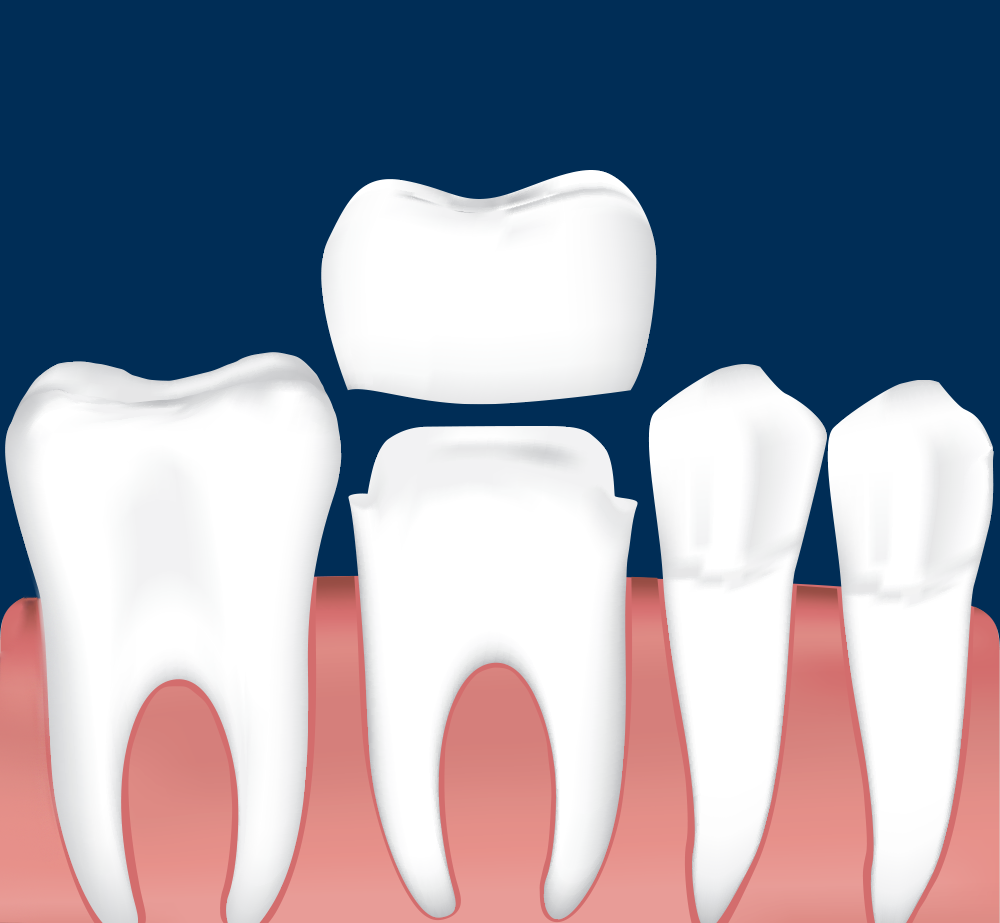 Digital illustration of a dental crown being placed on a tooth that is prepared for crowns with a  dark blue background
